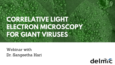 Giant Viruses under correlative light-electron microscopy