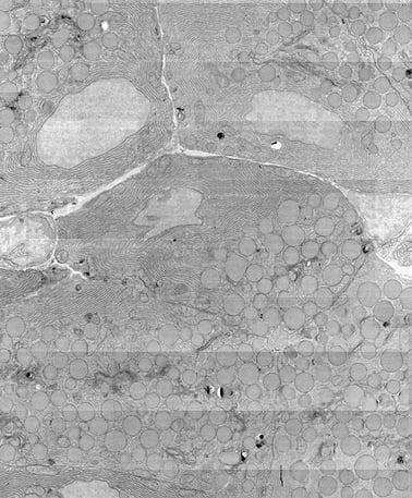 细胞的超高体电镜图
