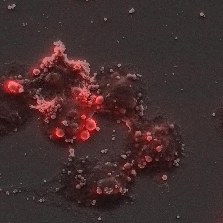 Dendritic cells with 250 nm bodipy bismuth (red) PLA nanoparticles.