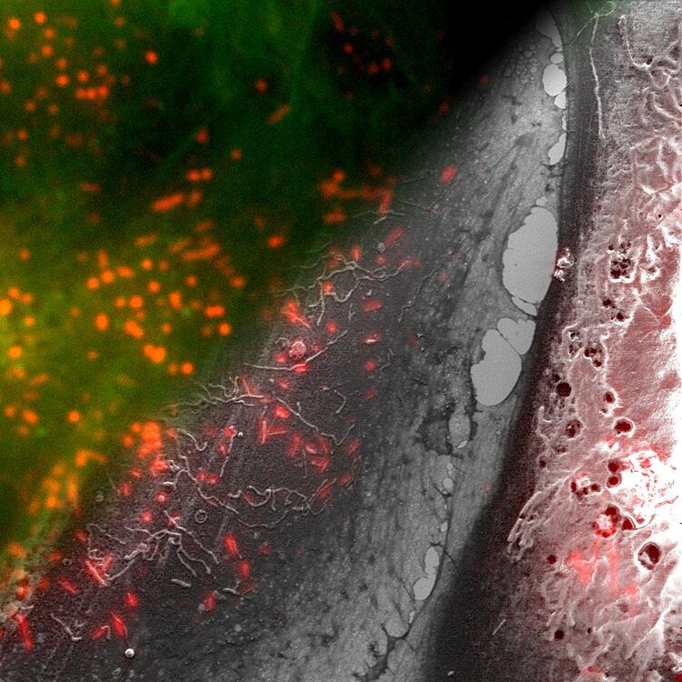 Endothelial cells labelled for von Willebrand Factor (red) and actin (green).