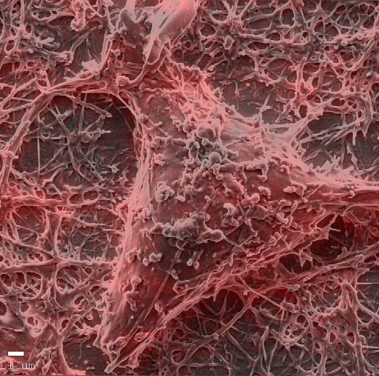 Neuron cells with actin labelling.