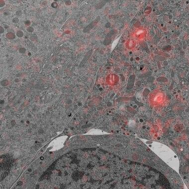 Pancreas beta cells with secretory granules tagged in red (MCherry).