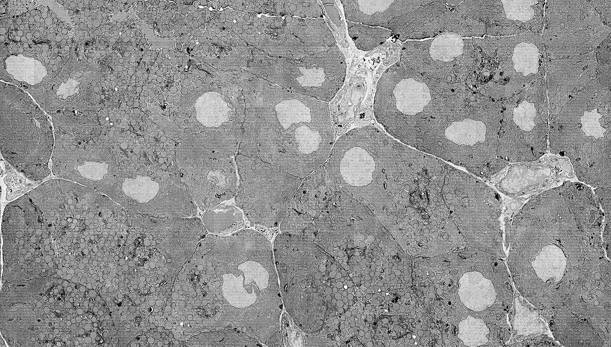 Rat pancreatic tissue imaged with FAST-EM