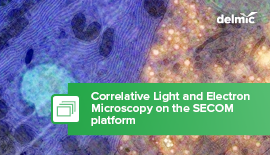 What is Correlative Light and Electron Microscopy?