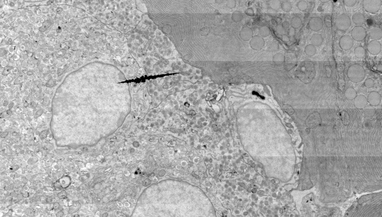 Field image of beta cells in rat pancreas.
