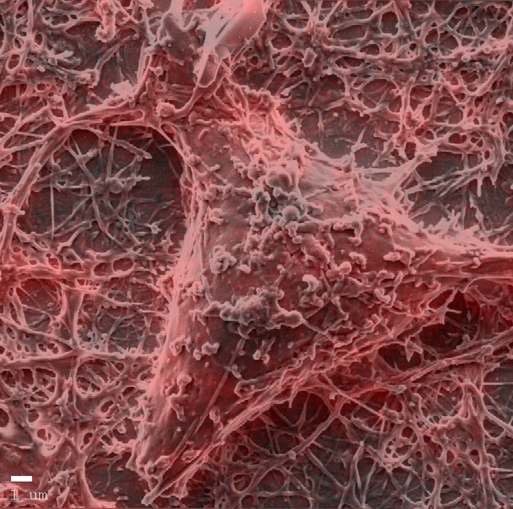 Neuron cells with actin labelling. Sample courtesy of J. Martinez-Hernandez.