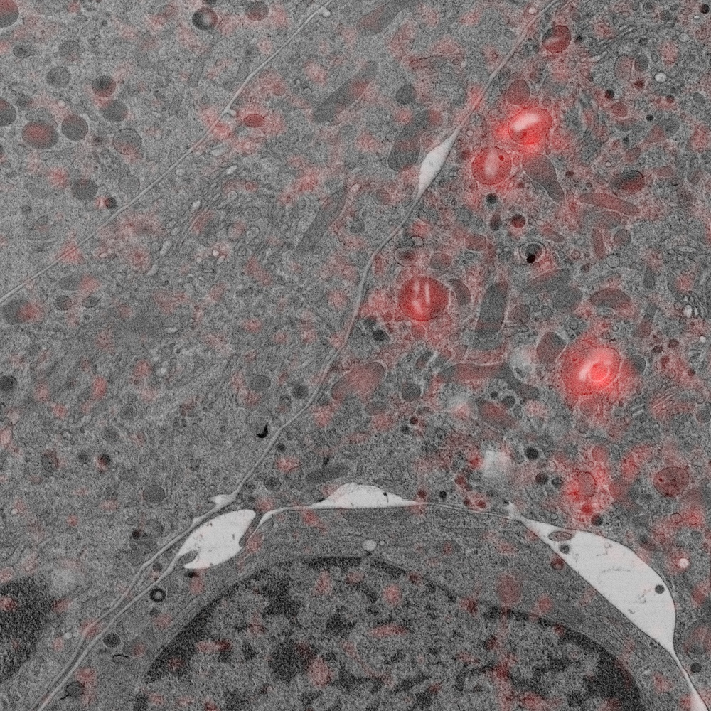 Pancreas beta cells with secretory granules tagged in red (MCherry). Sample courtesy: Y. Schwab, EMBL Heidelberg.