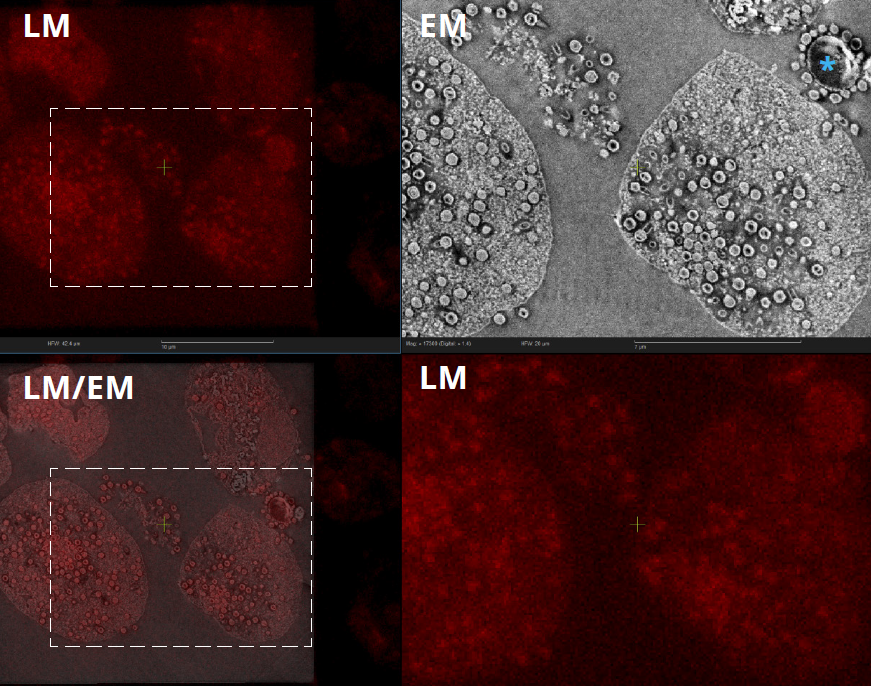 Tupanvirus infected cells image acquired with SECOM CLEM system